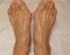 痛く・つらい外反母趾に鍼灸治療